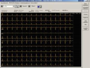 EKG GE Cardio Soft